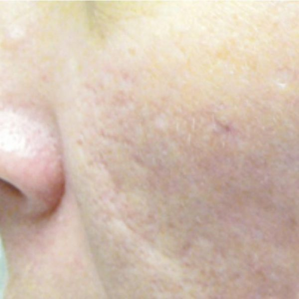 Cicatrici_acne_dopo