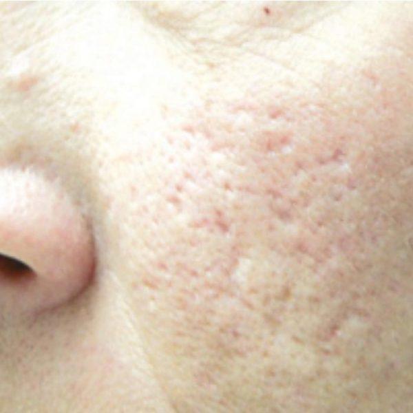 Cicatrici_acne_prima