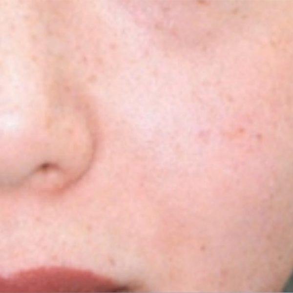 Lesioni_pigmentate_dopo